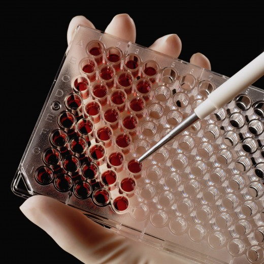 Анализ крови «расскажет» о продолжительности человеческой жизни