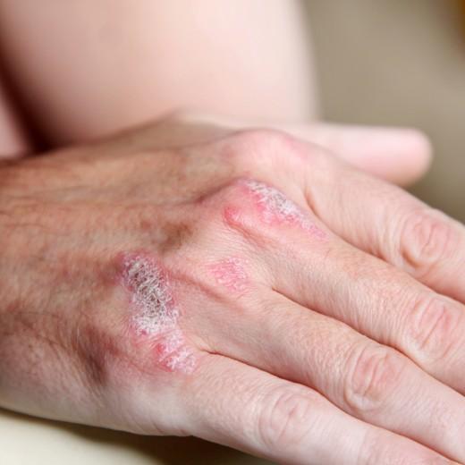 Советы по лечению псориаза