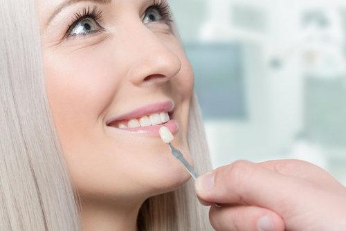 Установка виниров за два визита к стоматологу: услуга клиники «32 Дент»