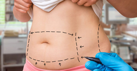 Абдоминопластика: что это за операция?
