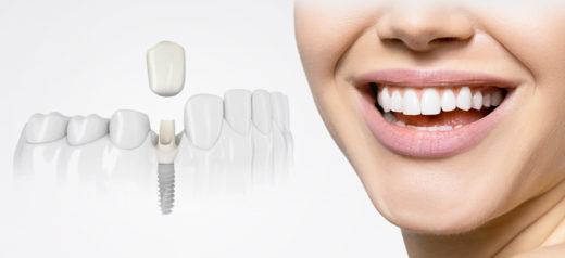 Как выбрать импланты зубов: виды и цены