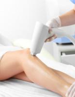 Лазерная эпиляция ног — сколько процедур нужно провести, чтобы кожа стала гладкой?